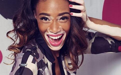 vitiligo-c (1)
